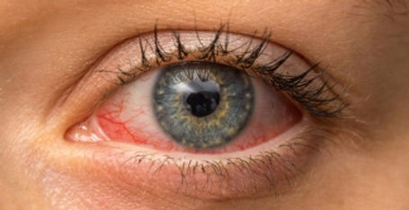 bloodshot-eye-header.jpg