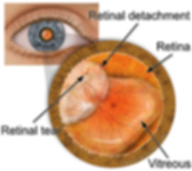 Retinal-Detachment.jpg