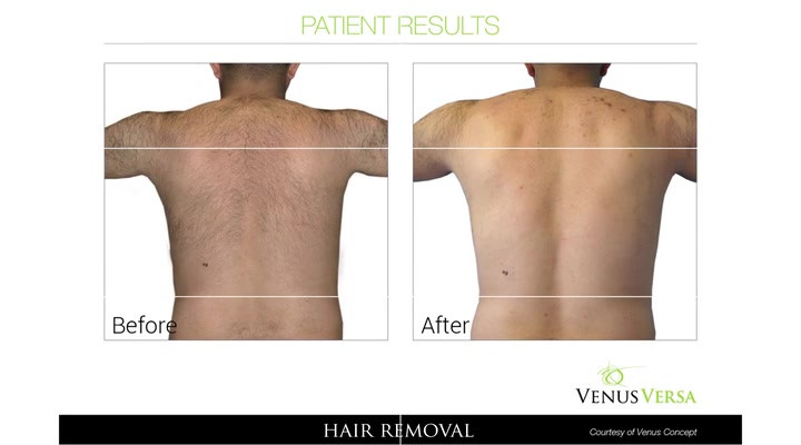 Best Lazer hair removal Clinic