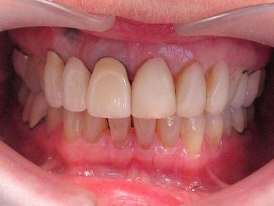 K.L.O. Dental Crowns Before