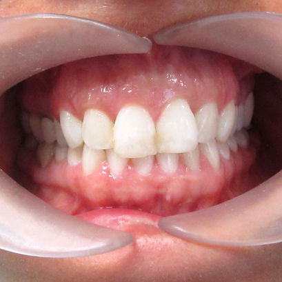 K.L.O. Dental Invisalign Before