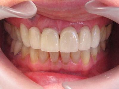 K.L.O. Dental Crowns After