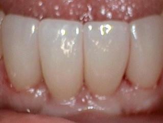Happy gums, happy patient.