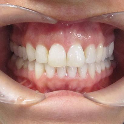 K.L.O. Dental Invisalign After