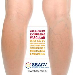 Varizes - clinica vascular Takahama - tatuapé