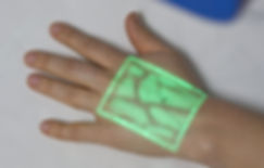 VeinViewer-Technology-for-Patients-with-