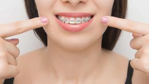 Aparat ortodontyczny a zęby a leczenie zębów