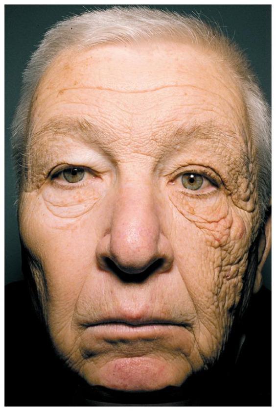 skin aging uv damage