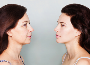 What causes skin aging and what can you do to slow down the process. By understanding the root cause of aging, you will have a better understanding of how to care better for your skin and your health.