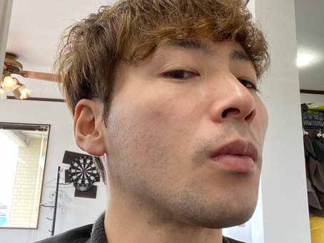 ひげ脱毛 5回目