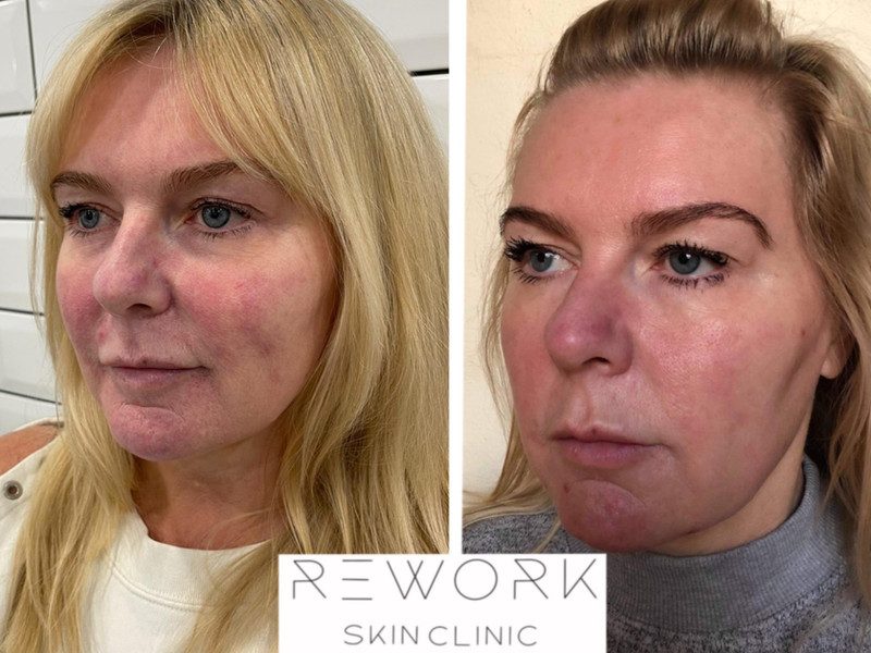 Rosacea treatment - 2 weeks after first treatment.