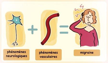 qu'est ce qu'une migraine ?