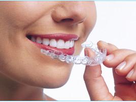 加州議會擬強制要求定制牙套前須拍攝X光片 牙科護理服務應維持平價且易獲得