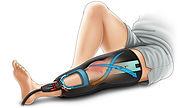 wraps-tech-knee-illustration.jpg