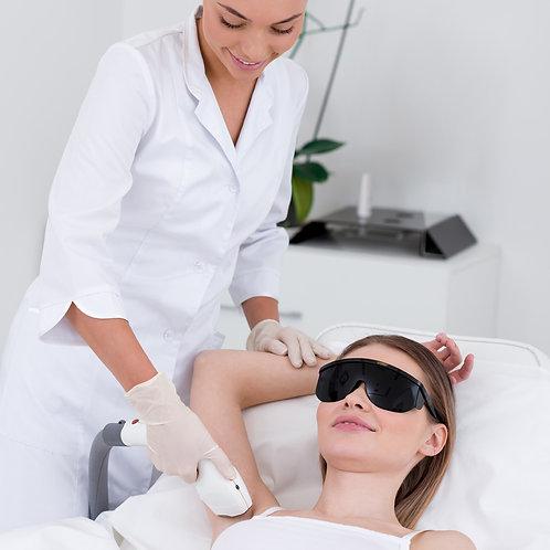 laser hair removal full back