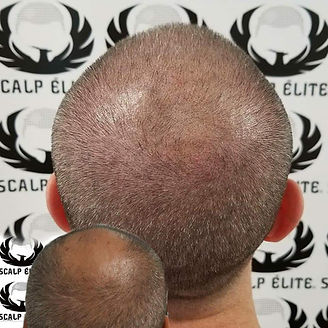 Micropigmentation capillaire, solution perte de cheveux, tatouage capillaire, sherbrooke, québec