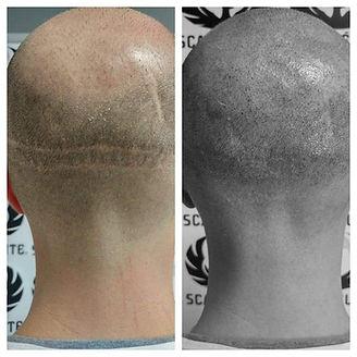 Micropigmentation capillaire, solution perte de cheveux, soins capillaires pour personne chauve, sherbrooke, estrie