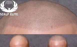 Micropigmentation capillaire, Clinique Peau Neuve à Sherbrooke