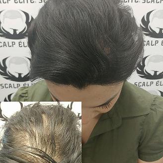 Micropigmentation capillaire, solution perte de cheveux, soins capillaires, sherbrooke, estrie