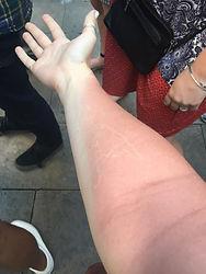 My terrible sunburn
