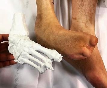3D printing bone model from TAC, 3D scanning, 3D printing, Barcelona