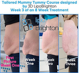 Mummy Tummy Before & After Cavitation an