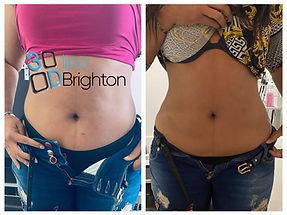 3D Lipo Brighton.jpg