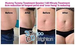 Mummy Tummy at 3d Lipo brighton.jpg