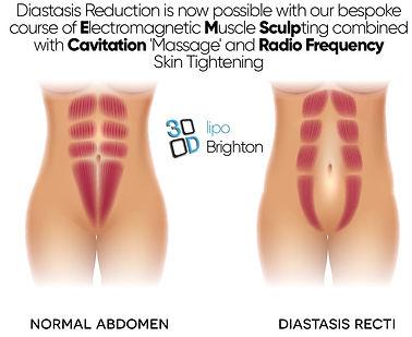 Diastasis 3d lipo brighton.jpg