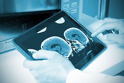 doctor examining a brain cat scan on a d