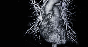 Ct scan angiogram (take photo from film