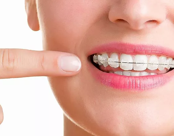 damon-clear-braces.webp