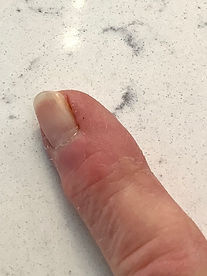 Healed wart on finger by Heelex clinic knoxville