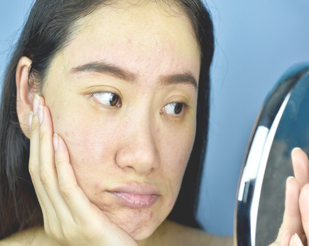WHY WE SUFFER FROM DRY SKIN