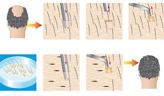 Robotisierte FUE Haartransplantation