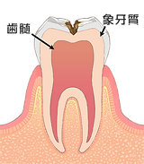 象牙質のむし歯