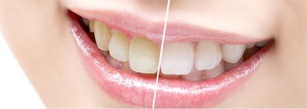 審美歯科ならホワイトニング。歯を白く綺麗に。