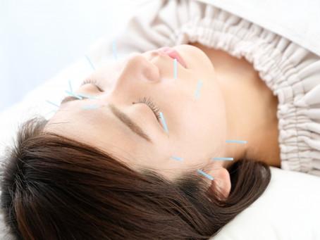 美容鍼と美顔温熱