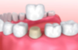 Image of Dental Crowns In Roswll GA - Vlass Dental Care