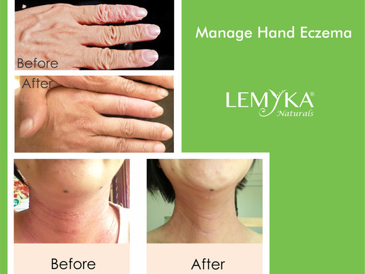 What are the common causes of hand eczema?