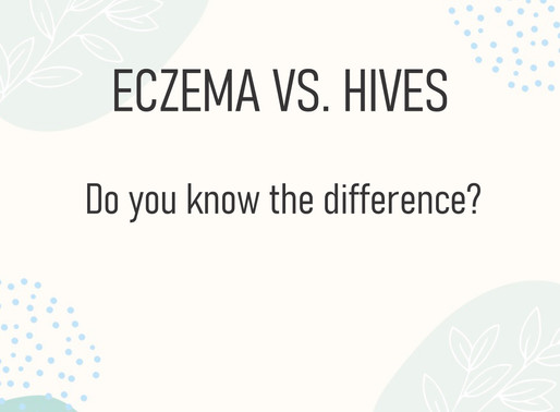Do you know the difference between eczema and hives?