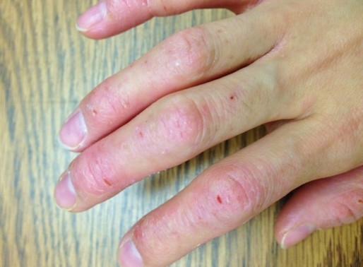 How to Manage Hand Eczema?