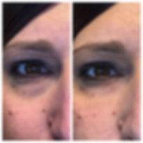 under eyes before and after Restylane dermal filler injections