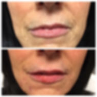 Before and after images of lines around the mouth treated with Restyland Refyne