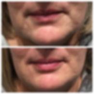 marionette lines in the face before and after Restylane Defyne dermal filler