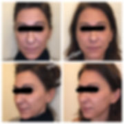 Before and after of face treated with Sculptra at Visage MedSpa in Ohio