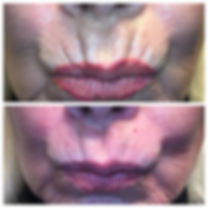 lips smokers lines before and after Restylane dermal filler injections