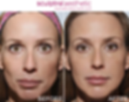 Before and after image of a woman who got Sculptra injections