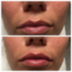 Before and after image of lips treated with Restylane at Visage MedSpa in Ohio