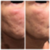 Before after treatment to acne scars